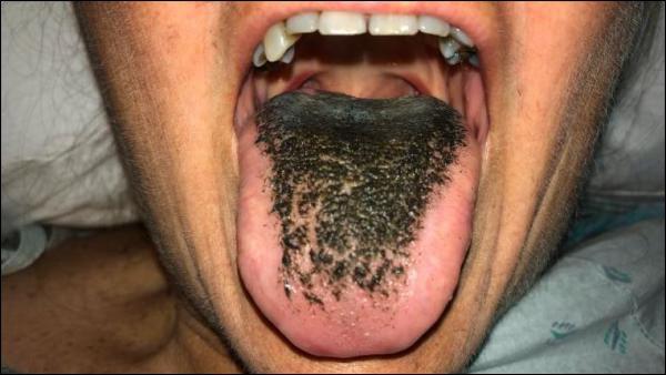 Schock im Krankenhaus: Frau bekommt schwarze, haarige Zunge