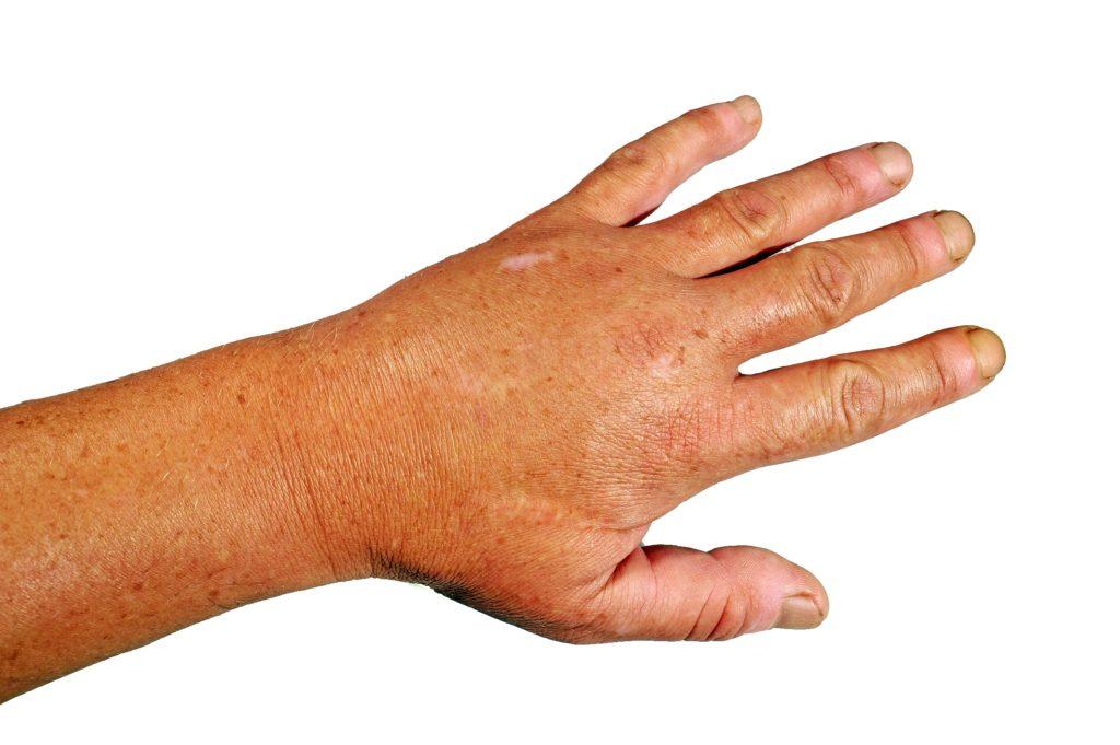 Geschwollene Adern Auf Dem Handrücken