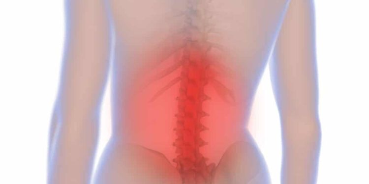 Bei einem Bandscheibenvorfall können Rücken- und Kreuzschmerzen entstehen, aber auch andere Beschwerdebilder sind möglich. (Bild: medistock/fotolia.com)
