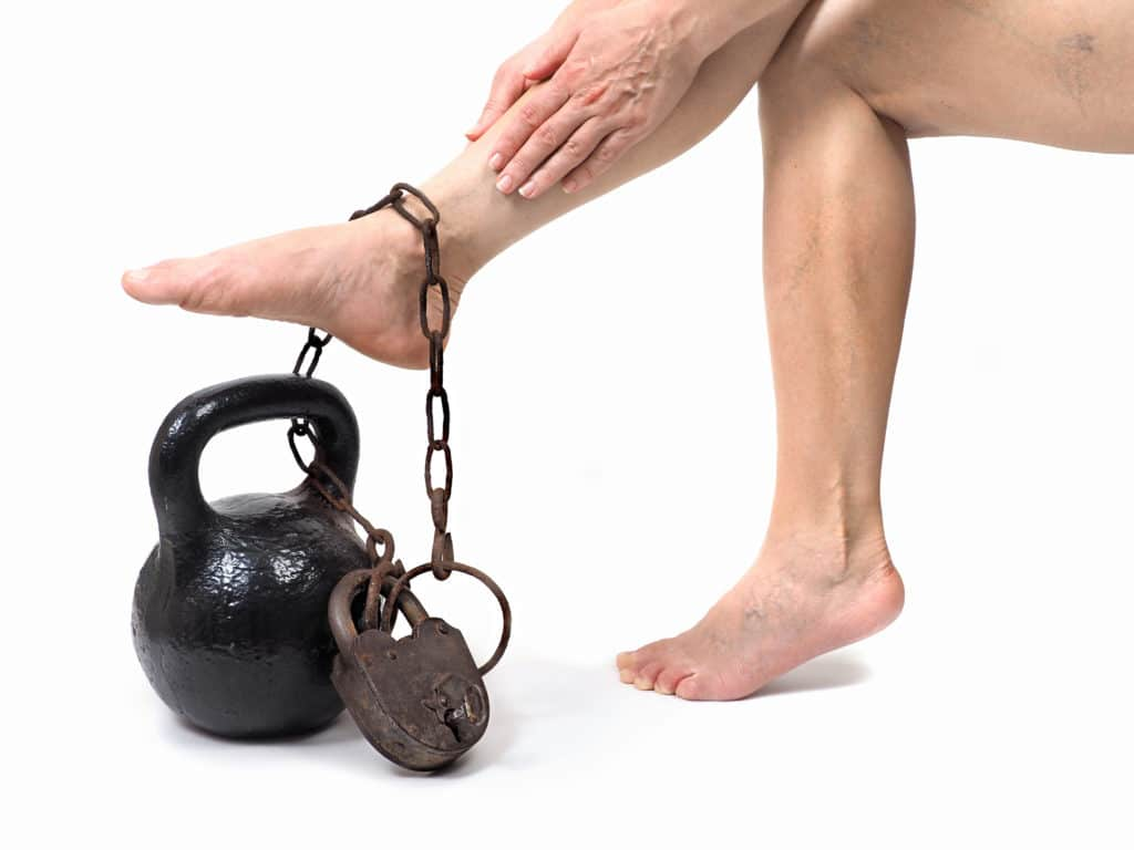 Schwere Beine - Ursachen und Behandlung - Naturheilkunde