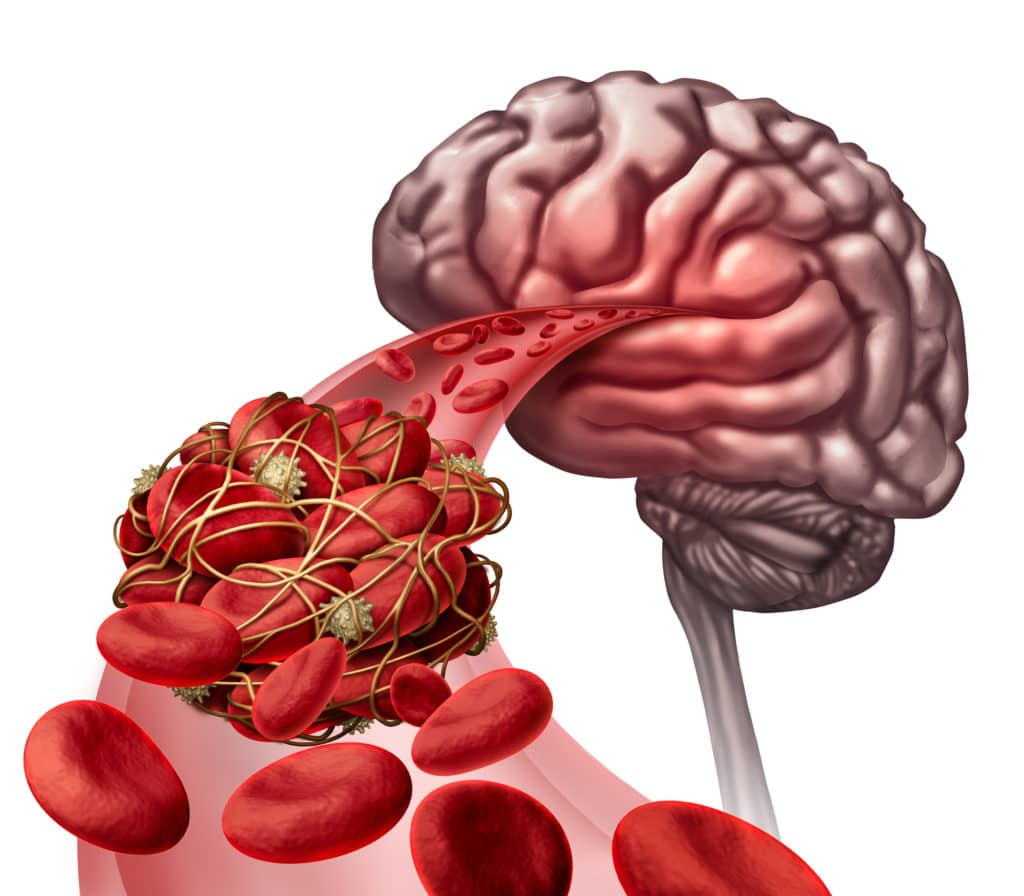 Wie man Blut verdünnt und Gerinnsel entfernt
