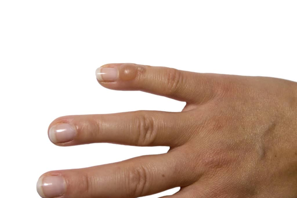 Was lindert Gelenkschmerzen in den Fingern?