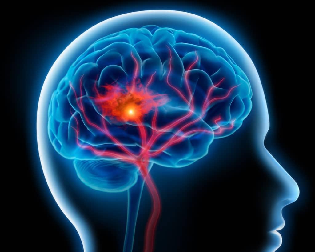 Hirnblutung 1024x819 - Bluthochdruck Und Rauchen Steigern Eindeutig Die Gefahr Von Hirnblutungen