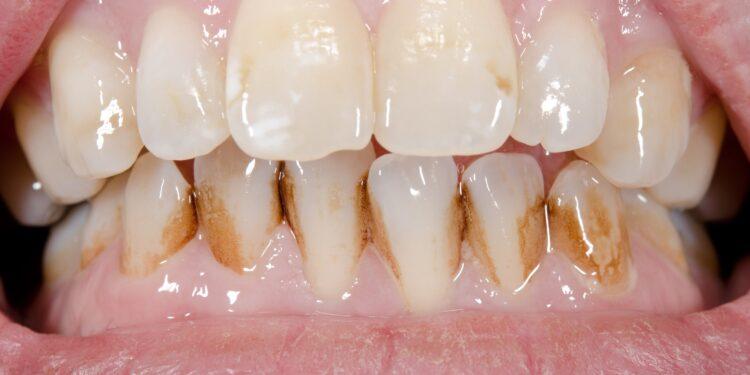 Zahnfront in Nahaufnahme mit Belägen an den unteren Zähnen