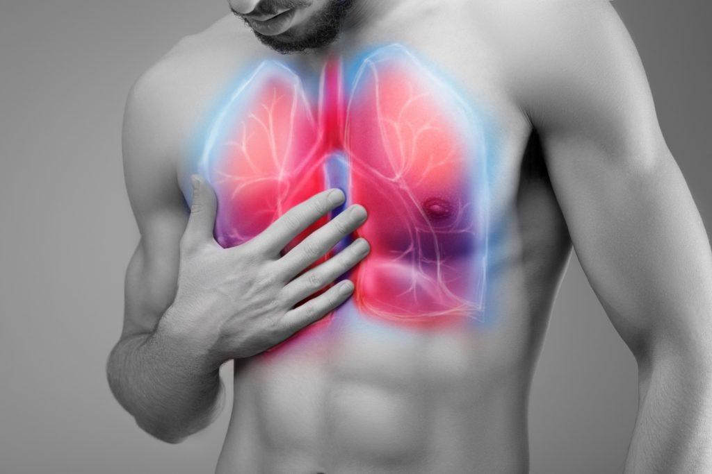 Brustschmerzen Schmerzen In Der Brust