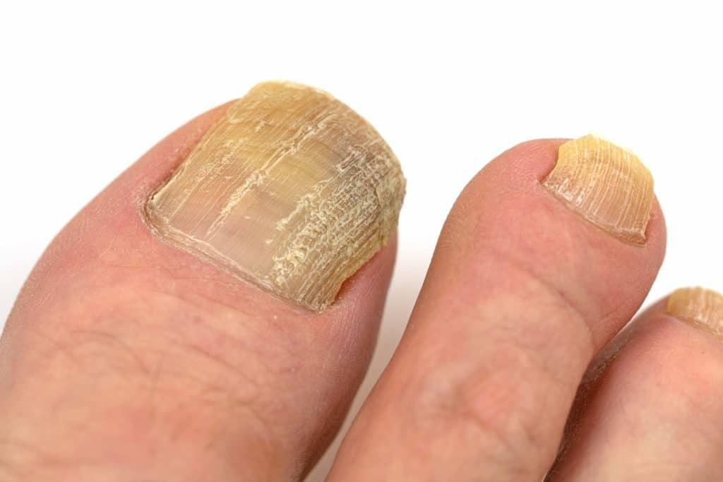 Fingernägel dicke Wuchernde und