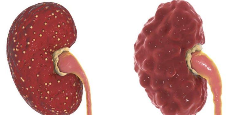 Darstellung einer entzündeten Niere im akuten und einer im chronischen Zustand