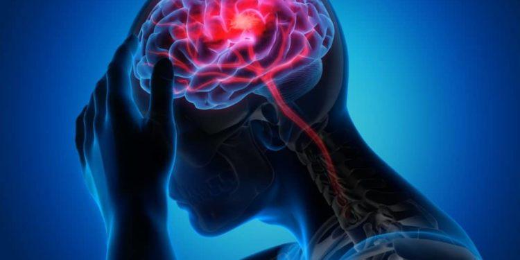 Computerdarstellung einer Person, die sich an den Kopf fasst, Gehirn ist farblich kenntlich gemacht