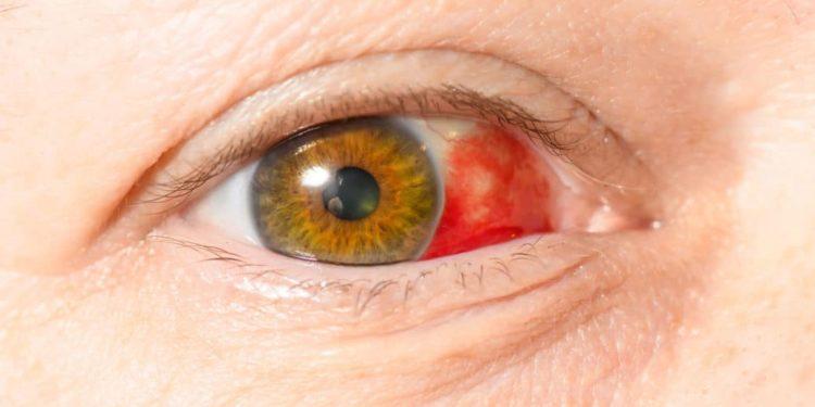 Nahaufnahme eines Auges mit Bluterguss