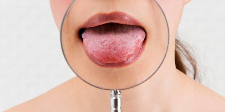 Eine Lupe vergrößert die Zunge einer jungen Frau