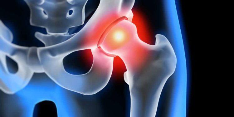 Röntgendarstellung einer Hüftgelenksarthrose