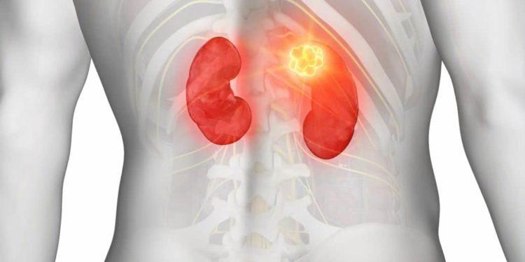 Computerdarstellung eines Nierentumors von hinten