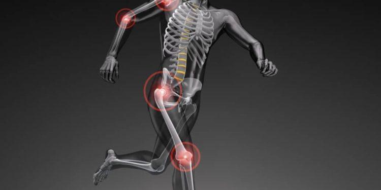 Computerdarstellung eines laufenden Körpers mit markierten Gelenkschmerzen