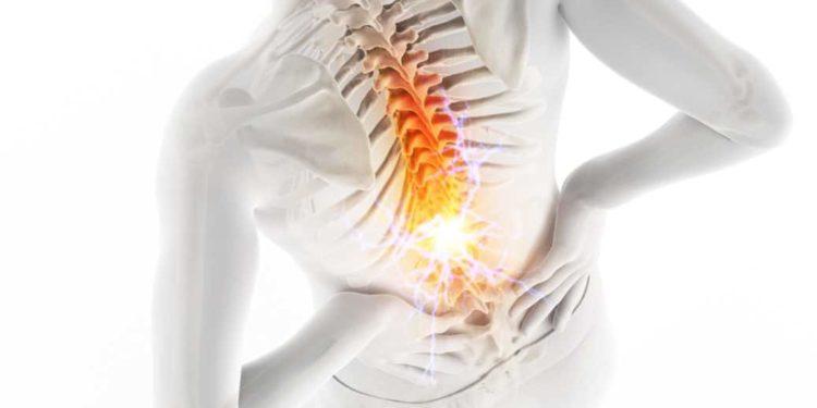 Computerdarstellung eines Körpers von hinten, der an Schmerzen leidet