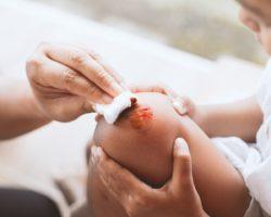 Reinigung einer Kniewunde