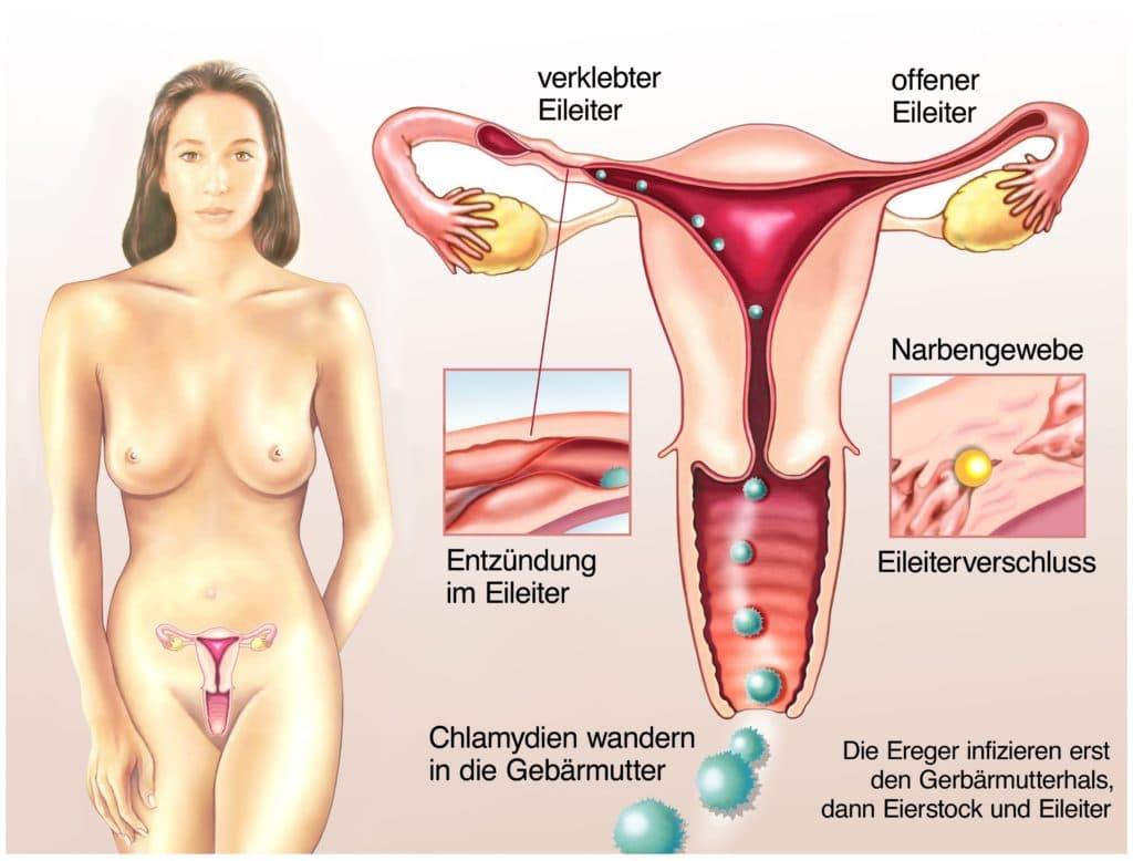 Infektion Chlamydien Frau