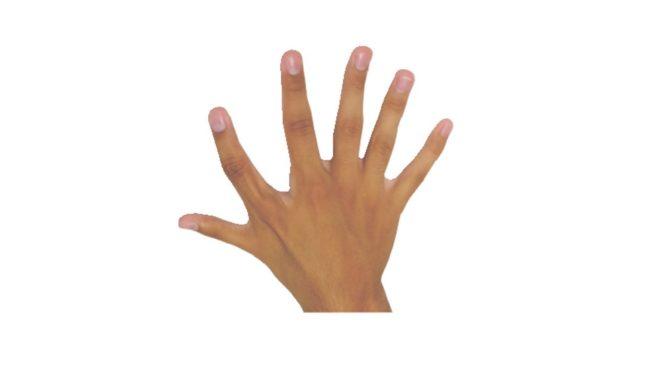 Eine Hand mit sechs Fingern