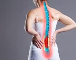 Computerdarstellung einer Wirbelsäule auf dem Rücken einer Frau