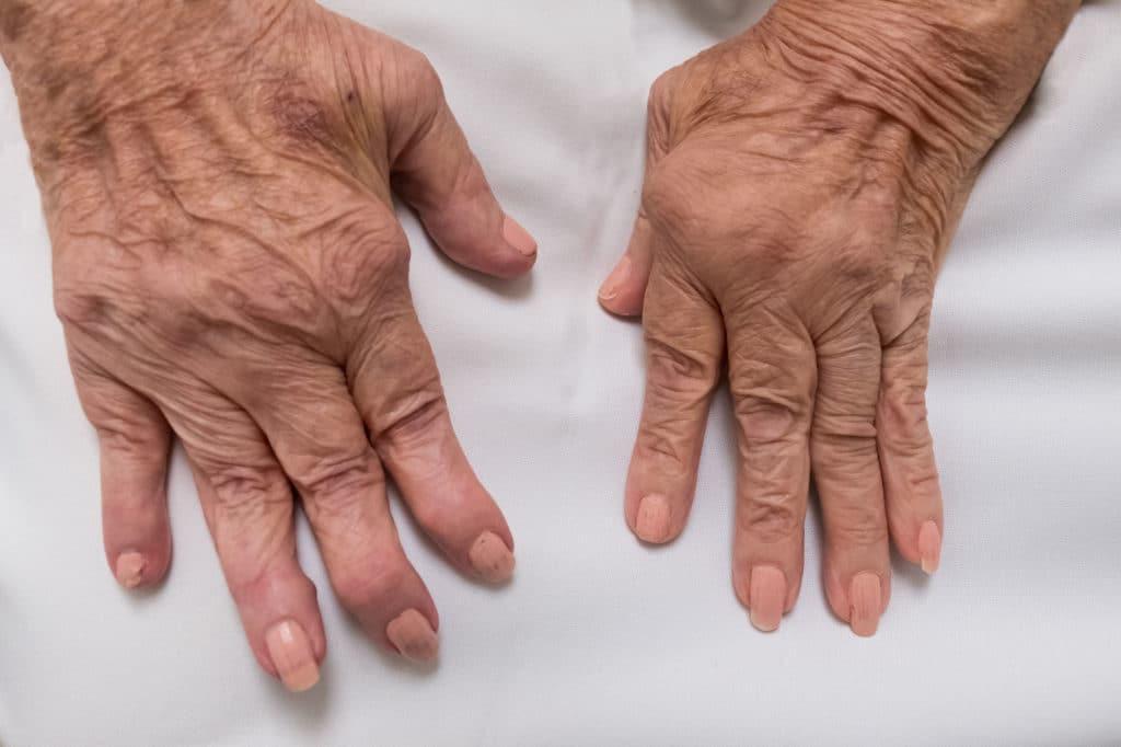 Von Rheuma verformte Hände
