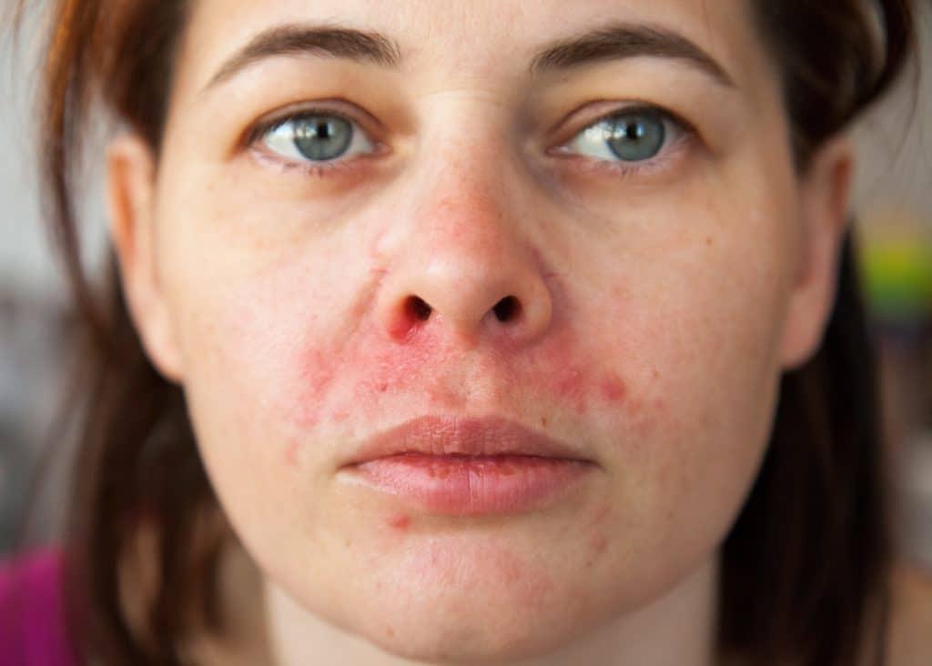 Frau mit Hautproblemen zwischen Mund und Nase