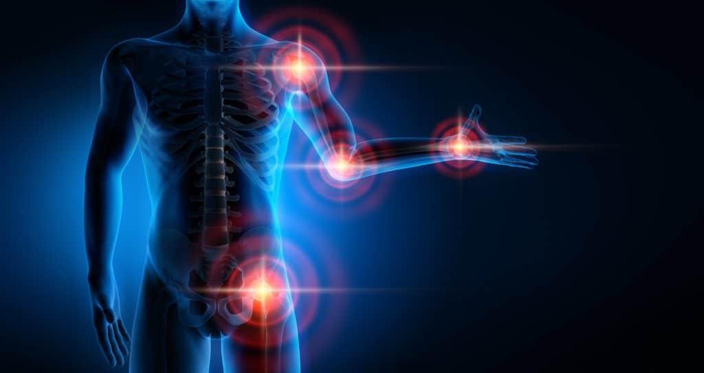 Markierte Schmerzpunkte an Gelenken