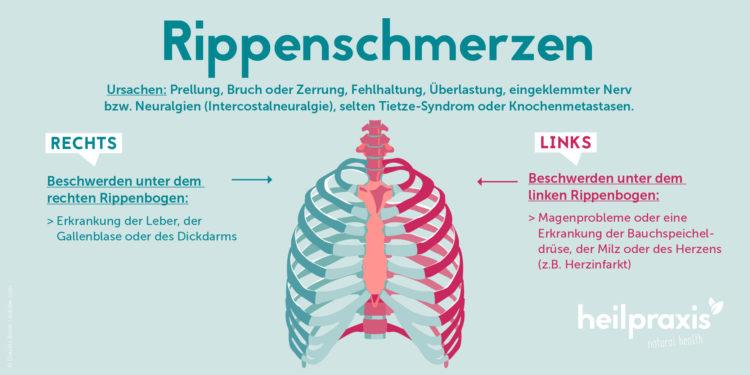 Schematische Darstellung der Rippen und möglicher Ursachen für Rippenschmerzen.