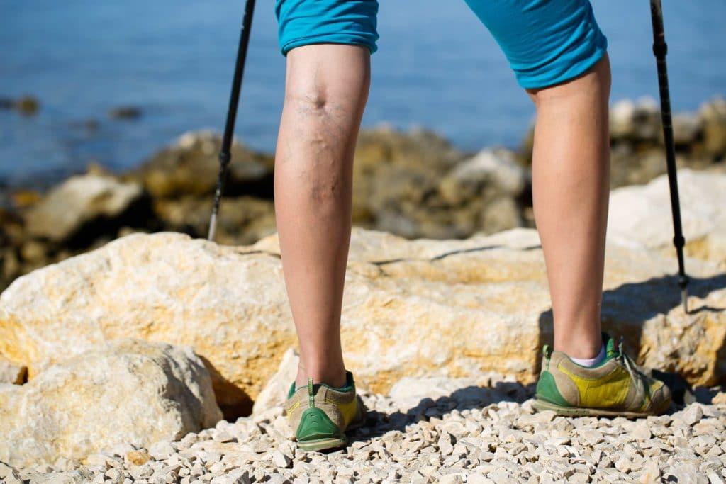 Wanderer mit Krampfadern an den Waden