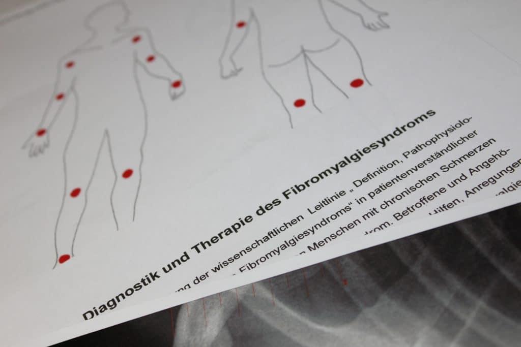 Fachliteratur Fibromyalgie