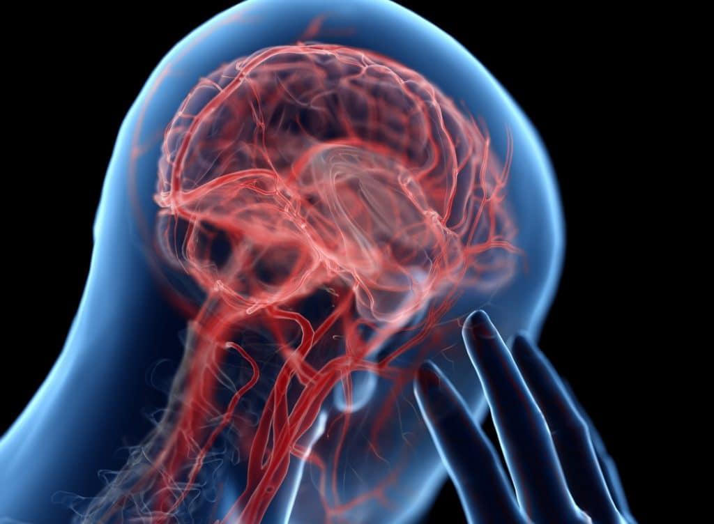 Darstellung Gehirn und Kopfschmerz