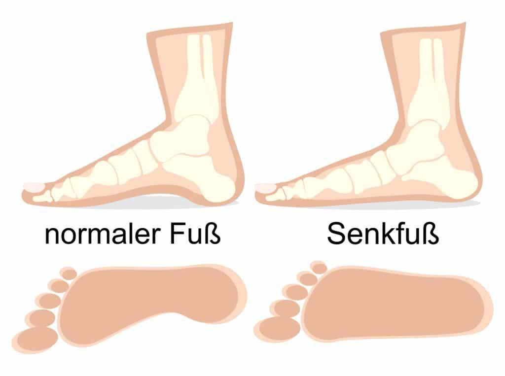 Vergleichende zeichnerische Darstellung eines normalen Fußes und eines Senkfußes.