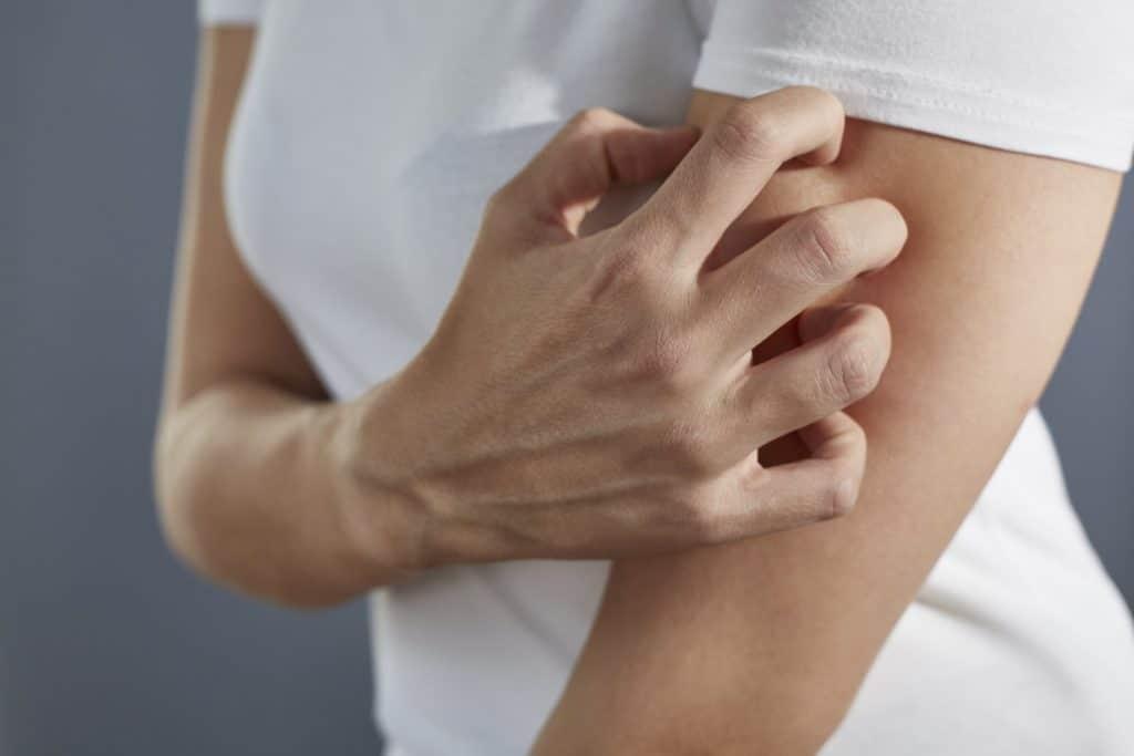 Frau in weißem T-Shirt kratzt sich mit der rechten Hand am linken Oberarm.
