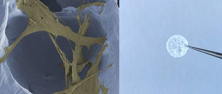 Mikroskopaufnahme eines Schaumstoffs zur Wundheilung