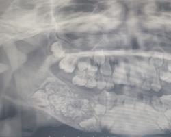 Gebiss-Röntgenbild zeigt deutlich zu viel Zähne.