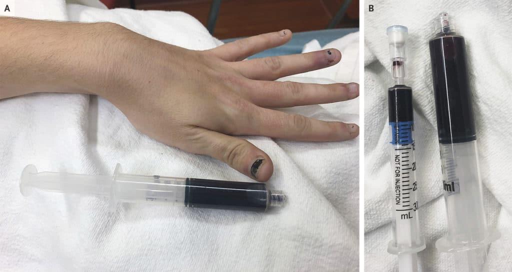 Verfärbte Fingernägel und entnommenes verfärbtes Blut einer Patientin mit Methämoglobinämie
