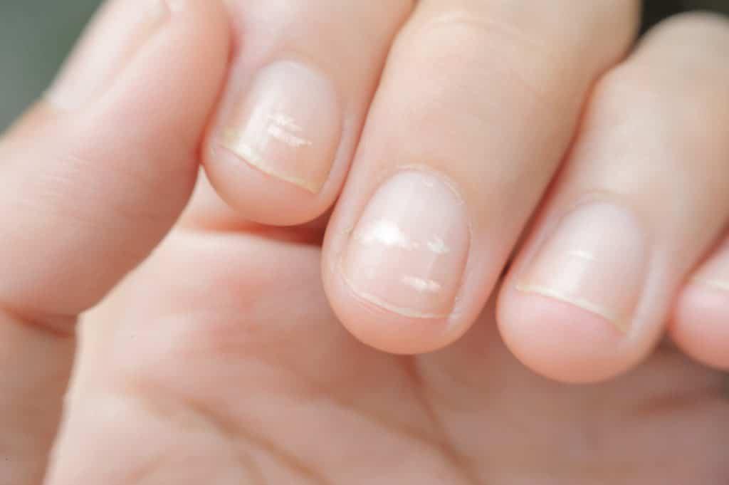 Nahaufnahme von Fingernägeln mit weißen Flecken.