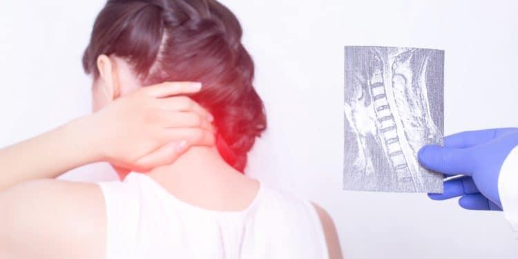 Eine Frau hält die Hand an ihren schmerzenden Nacken, während neben ihr eine andere Person ein Röntgenbild der Halswirbelsäule hochhält
