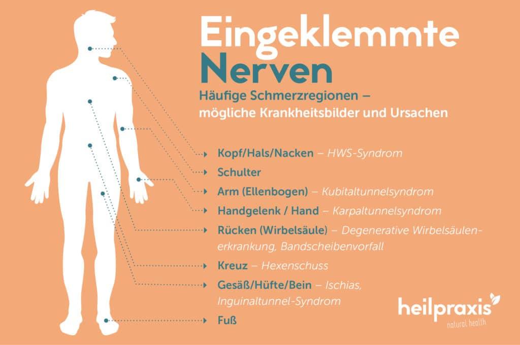 Grafik Heilpraxis eingeklemmte Nerven