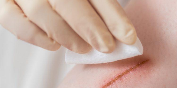 Ein Arzt tupft eine Wunde mit Desinfektionsmittel ab.