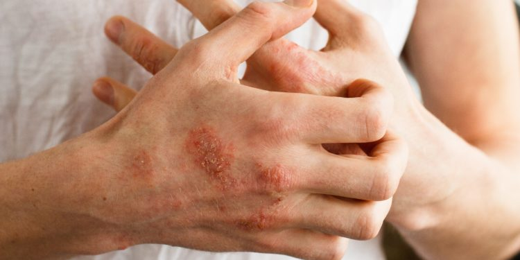 Eine Person mit Hautausschlag an den Händen kratzt sich am Handrücken.