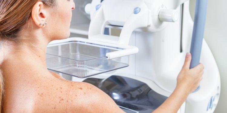 Frau bei einer Mammograhpie-Untersuchung