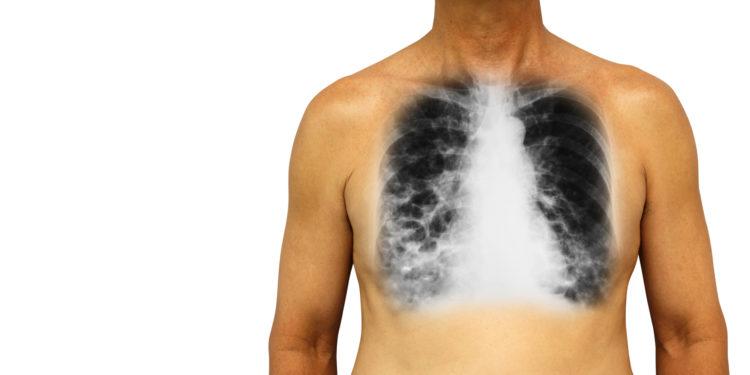 Eine Röntgenaufnahme der Lunge eines Mannes mit COPD.