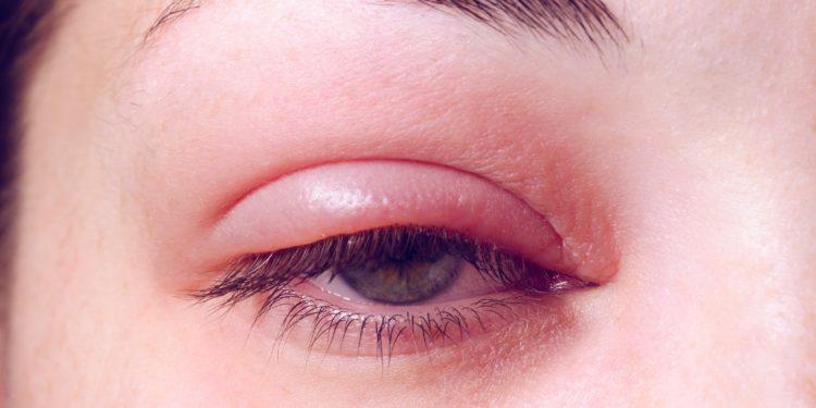 Eine Frau mit geschwollenem, geröteten Auge.