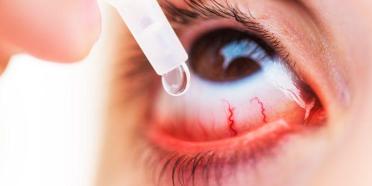 Eine Person tropft sich Augentropfen in den Bindehautsack.