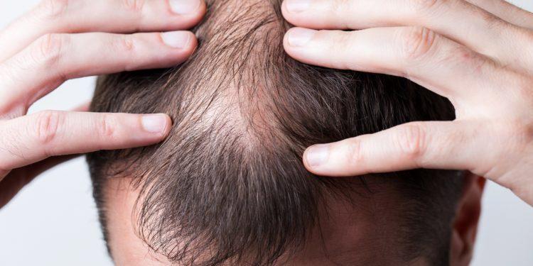 Mann fasst sich an den Kopf mit Haarausfall.