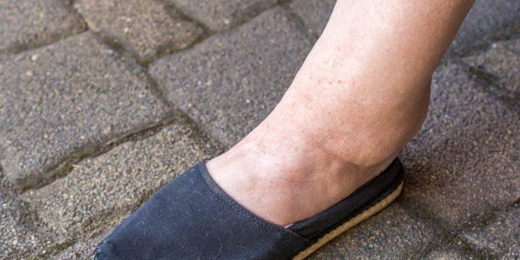 Geschwollenes Bein einer Frau durch Wassereinlagerungen.