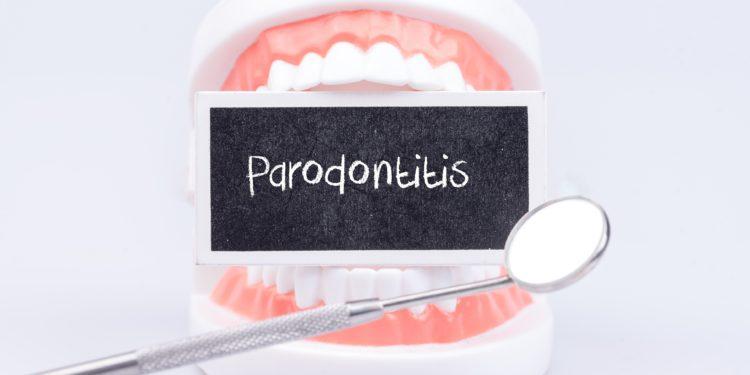 In einem künstlichen Gebiss ist der Schriftzug Parodontitis platziert.