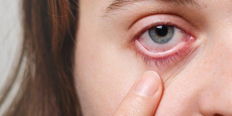 Eine Frau zeigt ihr gerötetes Auge.