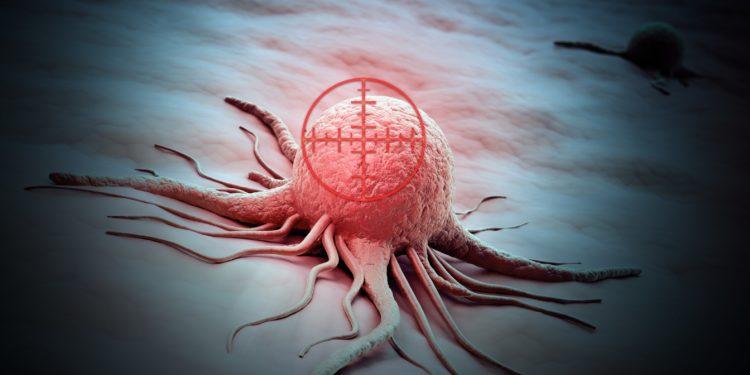 Ein Tumor wird durch ein Fadenkreuz anvisiert.