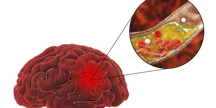 Grafische Darstellung eines menschlichen Gehirn, in dem eine Arterie verstopft ist.