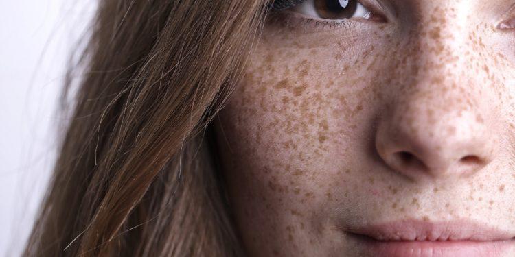 Rechte Gesichtshälfte einer Frau mit vielen Sommersprossen in Nahaufnahme.